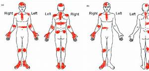 Introduction To A Referred Sympathetic Pain Map