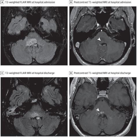 listeria monocytogenesinduced rhombencephalitis