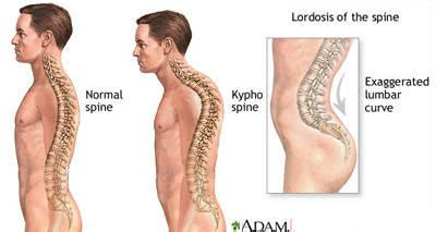 Back Pain After Standing by Kyphosis Lordosis Posture Correction Answers On Healthtap