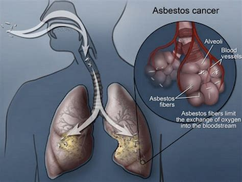signs  symptoms  asbestos lung cancer