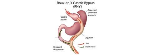 Gastric Bypass Melbourne Weight Loss Surgeon. Colleges With Animal Science Majors. Criminology And Forensic Science. Reasons For Mergers And Acquisitions. Aliexpress Mastercard Coupon Ibew Local 595. Small Business Wireless Plans. Rock Cage Retaining Wall Patent Lawyer Boston. Renewable Energy Master Degree. Abuse Of Medical Marijuana Roth Ira Tax Rules