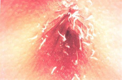 Gi Parasitology Gastroenterology 2 With Bruggen At Wake