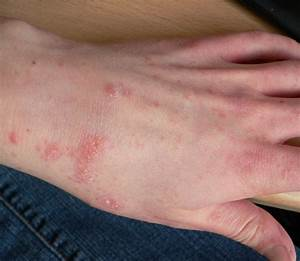 Scabies Images - Reverse Search