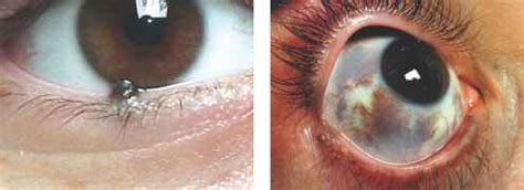 blue nevus eyelid diseases central lakes medical