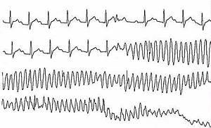 rythme cardiaque trop rapide
