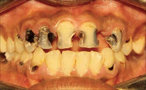 oral health management considerations  patients