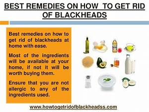 How To Get Rid Of Whiteheads Fast At Home Hira Beauty Tips ...