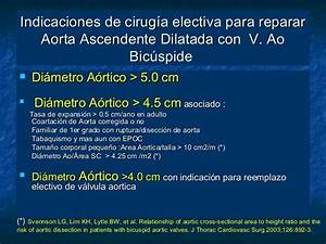 Enfermedad Valvula Aotica Bicuspide
