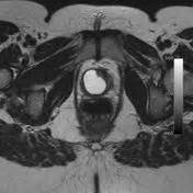 Periurethral cystic lesions | Radiology Reference Article ...