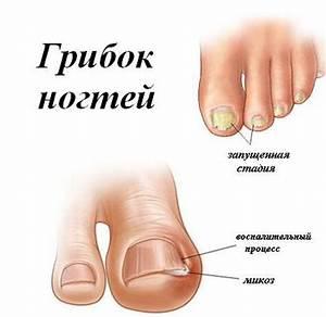 Через сколько проявляется грибок на ногах