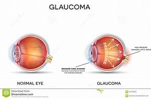 Glaucoma Stock Vector  Illustration Of Care  Canal  Chart