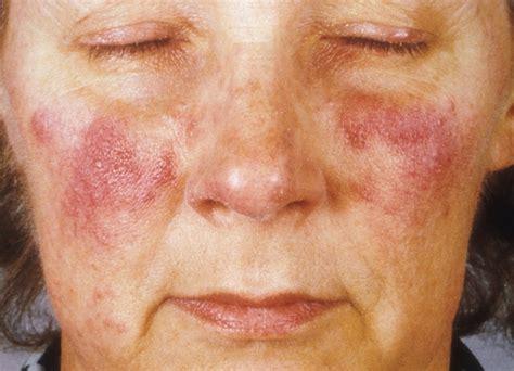 Acne bij volwassenen: oorzaken, tips en behandeling mens