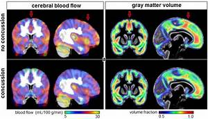 Brain Mri Shows Lingering Effects Of Concussion