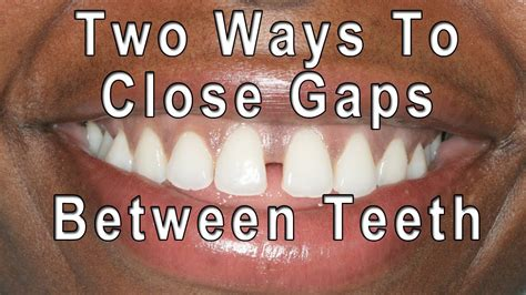 how to fix gap between how to gaps between teeth