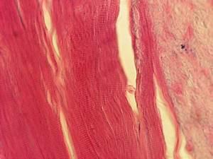 gebärmutterhalsabstrich