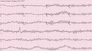 wikipedia org wiki ventricular fibrillation ventricular