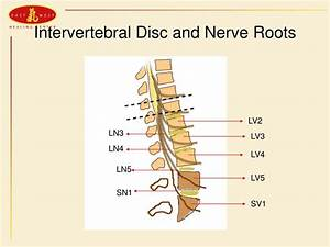 PPT - Pathology and TCM Treatment of the Herniated Lumbar ...