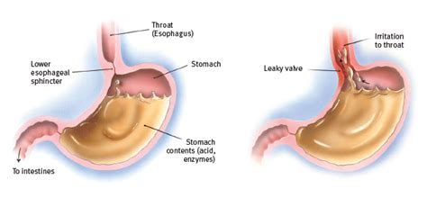 family health  family medicine stomach ulcers