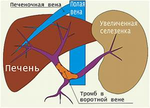 Гипертония при оргазме