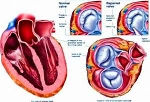 Физиопроцедуры противопоказания при гипертонии