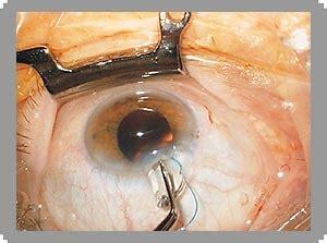 GlaukomDefinition