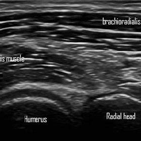 Ultrasound of the normal elbow. Longitudinal view of the ...