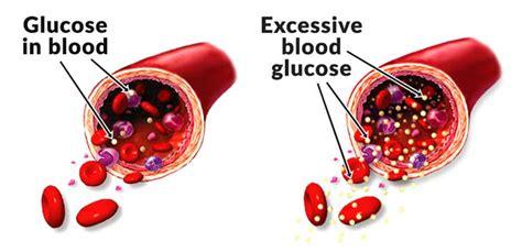 signs showing  blood sugar   high   globe