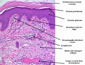 Dermatopathology Made Simple - Inflammatory: September 2010