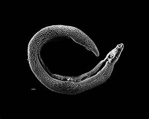 this world we live in: Schistosomes: beware the water