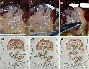 Photographs Showing The Cannulation Of The Bile Duct And The Perfusion