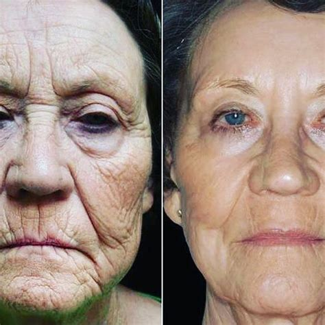 eclipsepen microneedling    pictures