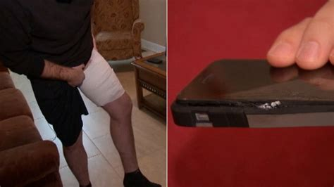 EXCLUSIVE: Long Island man burned on leg by iPhone when it ...