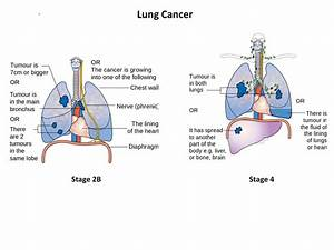 Types Of Cancer Diagrams