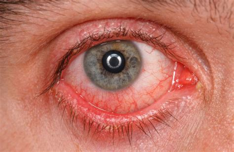 9 Natural Ways To Reduce The Appearance Of Bloodshot Eyes