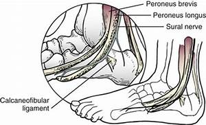 Fractures of the Calcaneus   Musculoskeletal Key