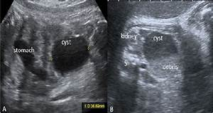 Figure1  Ultrasound Images Of Fetal Ovarian Cysts  A  Longitudinal View