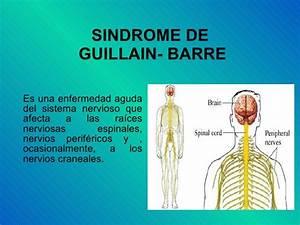 Sindrome de gui... Guillain Barre