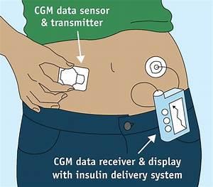 The Latest In Medical Tech For Diabetes Care  A Non-invasive Glucose Sensor