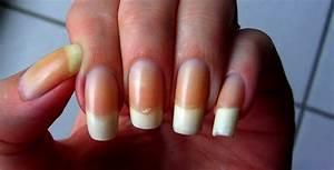 Comment Enlever Du Vernis : comment att nuer un ongle jaunit par un vernis sarena nail ~ Medecine-chirurgie-esthetiques.com Avis de Voitures