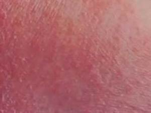 Heat Rash Thighs | www.pixshark.com - Images Galleries ...