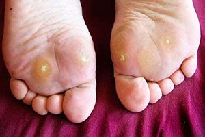 planters wart on toe what causes plantar warts and how can i get rid of them