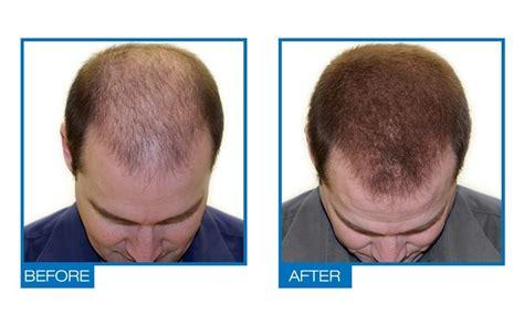 Amazon.com : Omiera Labs Exalt Maximum Strength Hair Loss