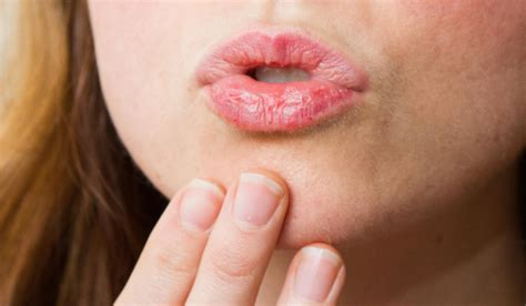 20 Home Remedies For Oral Thrush In Adults Wikihomenutrition