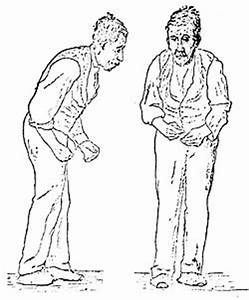 Parkinson's disease - Simple English Wikipedia, the free