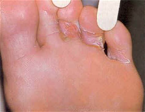 Home Remedies For Athelete's Foot  Symptoms, Causes And. Building Signage. Smil Stickers. Eduction Logo. Christening Banners. Really Signs. Kayar Murals. February 6 Signs. Black Decals