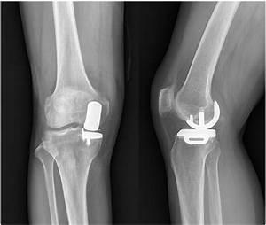 Does New Instrumentation Improve Radiologic Alignment Of The Oxford U00ae Medial Unicompartmental