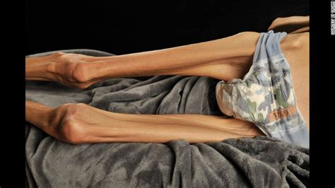 Skinniest Woman Alive, I Think