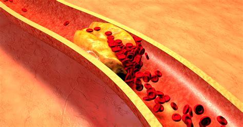 sinais  podem indicar colesterol alto tua saude