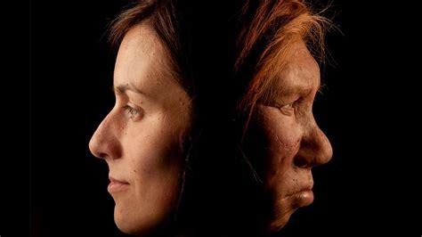 hidden neandertal dna  increase risk  allergies