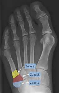 5th Metatarsal Fracture Zones